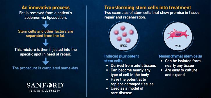 Sanford stem cell trial crosses key threshold in offering orthopedic